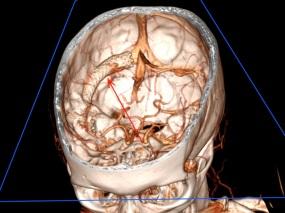 3D-brain-stent